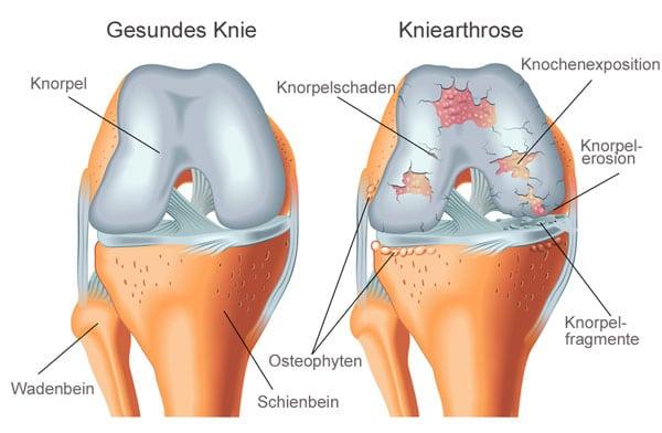 Kniearthrose