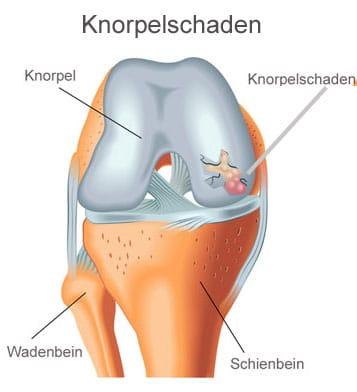 Knorpelschaden Knie