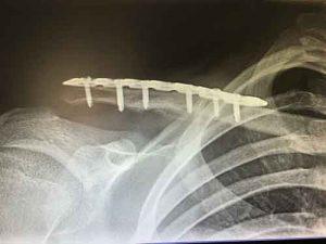 Knochenbruch Verplattung